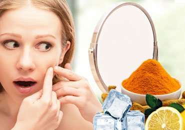 How to Get Rid of Acne with Home Remedies?