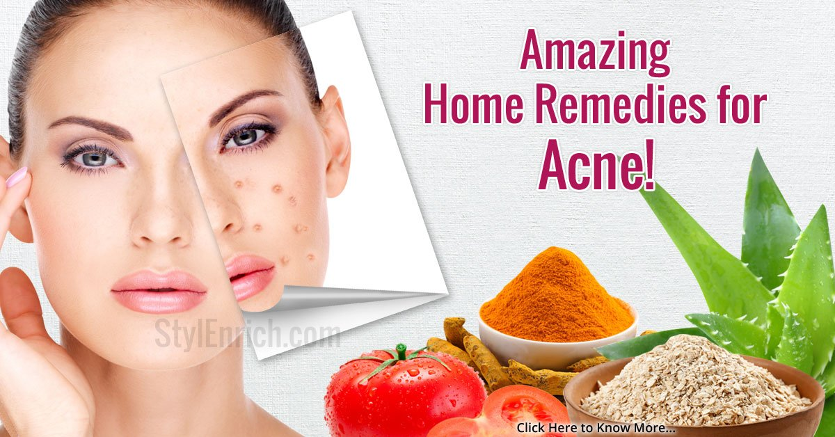 how to get rid of face acne home remedies