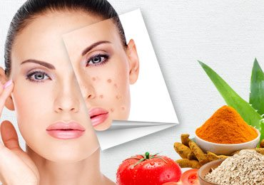 Acne Home Remedies : How to Get Rid of Acne Naturally from Simple Ingredients!