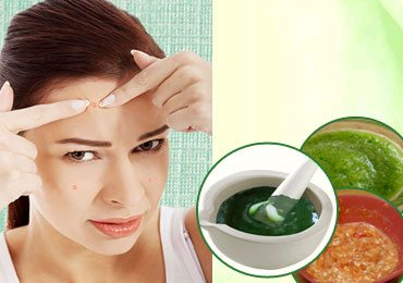 Home Remedies for Pimples : 3 Homemade Masks to Treat Acne