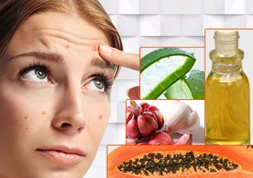how to get rid of pimples using home remedies