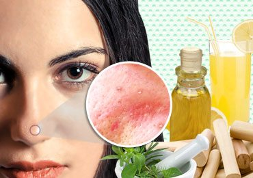 Whiteheads Home Remedies : How to Get Rid of Whiteheads on Face?