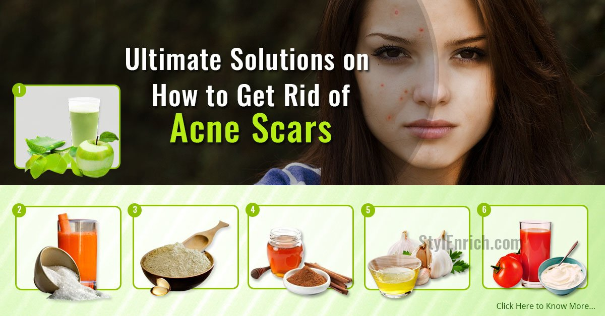 How To Get Rid Of Scars On My Face Naturally