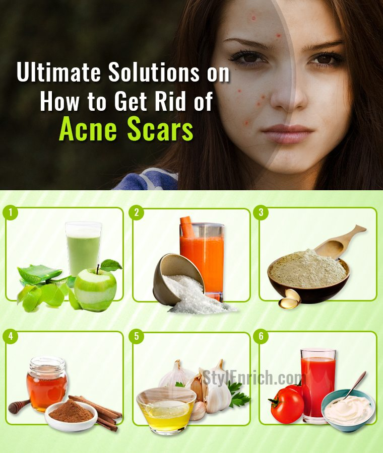 Get Rid Of Acne And Scars Naturally