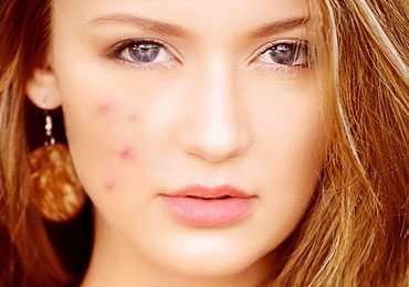 Acne Home Remedies : How To Get Rid of Pimples With Home Remedies?