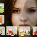 Acne Scars Treatment : Top 10 Ultimate Solutions on How to Get Rid of Acne Scars