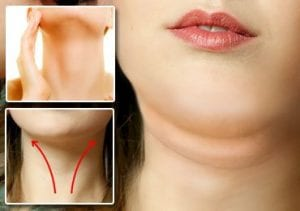 How to Get Rid of Double Chins