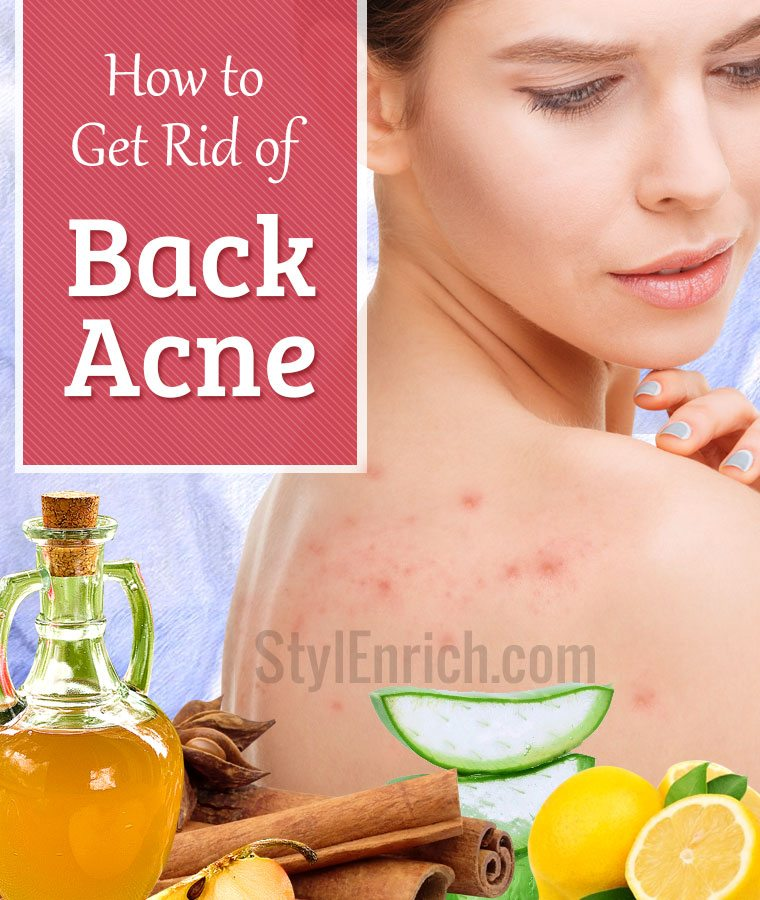 Make Use Of Acne Remedies To Discard Acne