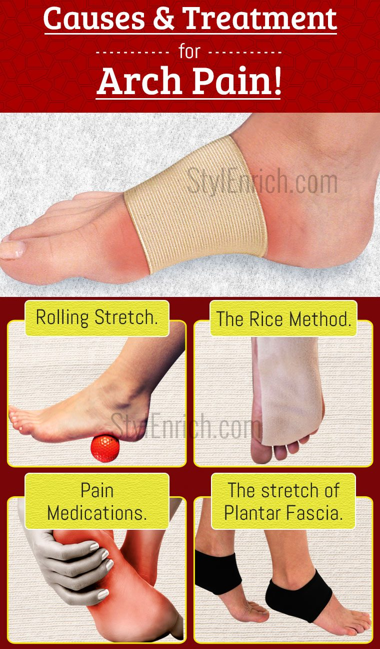 Foot arch pain
