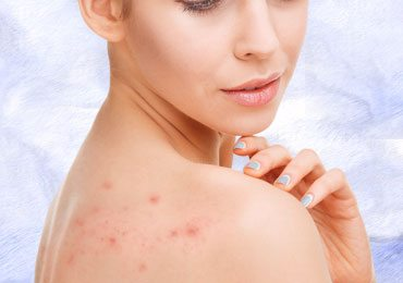 How to Get Rid of Back Acne Using Simple Home Remedies?