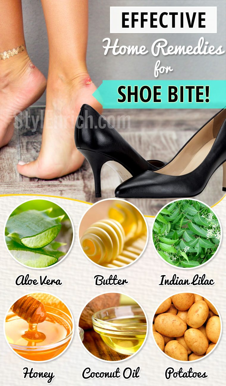 Home remedies for shoe bite