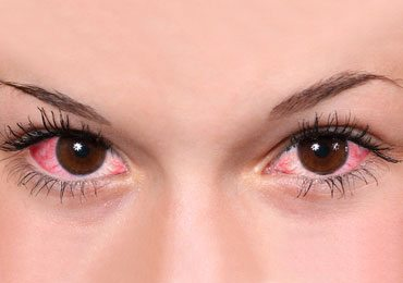 10 Effective Home Remedies For Eye Inflammation!