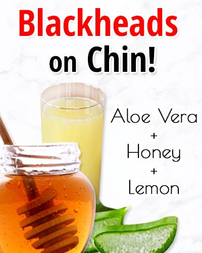 Aloe Vera Gel, Honey, and Lemon Juice for Blackheads On Chin