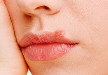 Cold Sore Remedies : 10 Ways To Get Rid Of Cold Sores!