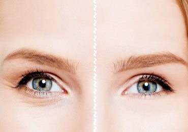 How to Get Rid of Under Eye Wrinkles or Under Eye Creases!