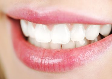 Natural Teeth Whitening : How To Whiten Teeth Naturally!