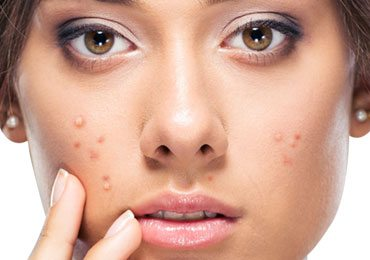 Simple Yet Very Effective Ways to Get Rid of Pimples Fast!