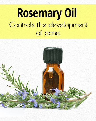 Rosemary Oil for Acne Treatment