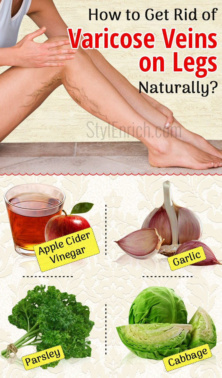 Can I Get Rid Of Varicose Veins Naturally