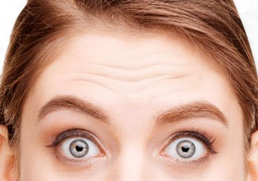 How to Get Rid of Forehead Wrinkles Naturally?