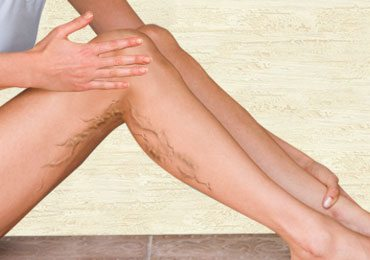 How to Get Rid of Varicose Veins on Legs Naturally?
