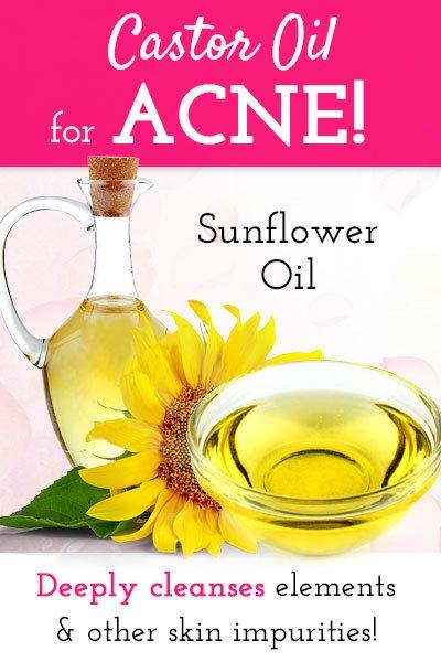 Castor Oil with Sunflower Oil For Acne