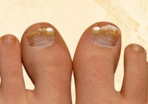 How to Cure Toenail Fungus Naturally?