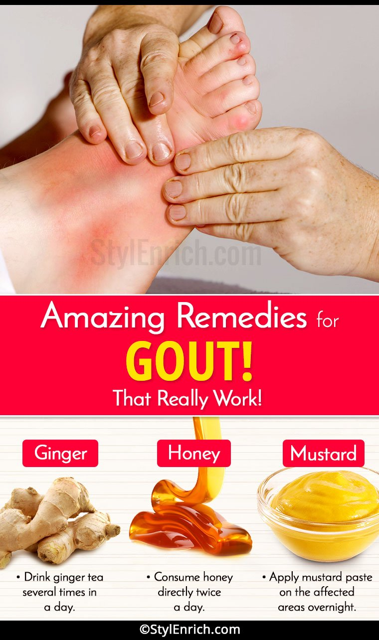 homeopathic remedies gout pain ayurvedic treatment of increased uric acid diet plan for gout pdf
