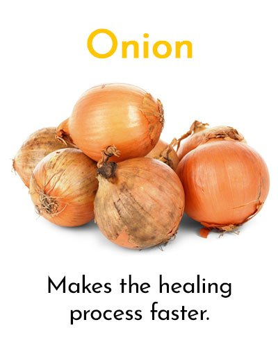 Onion for Minor Cuts and Grazes