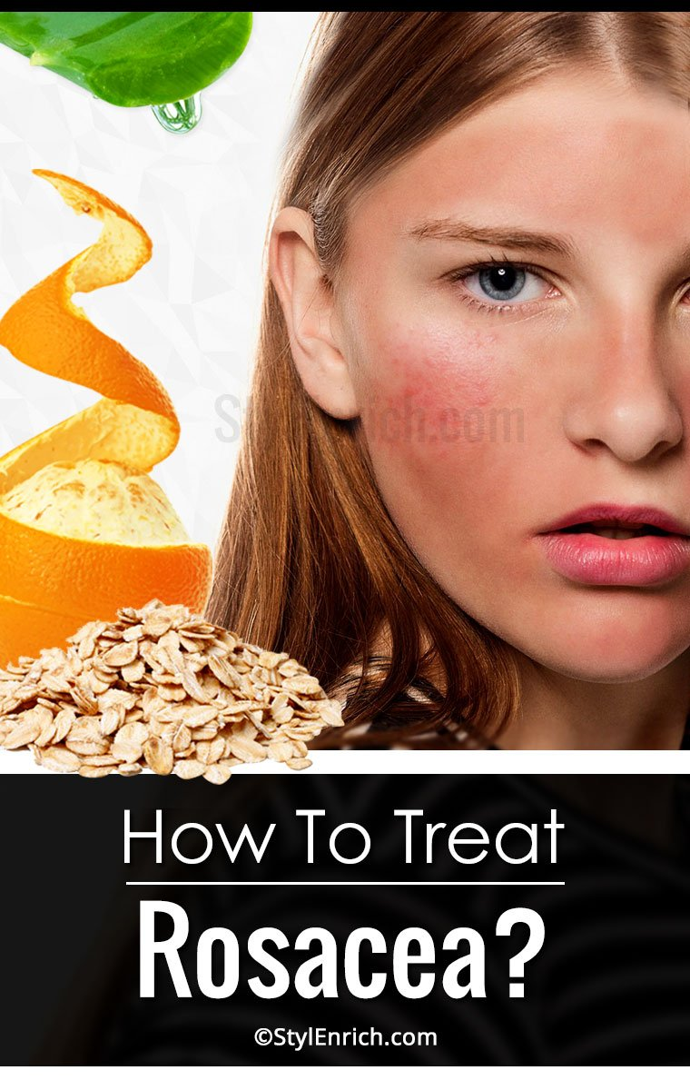 Rosacea Treatment With Amazing Homemade