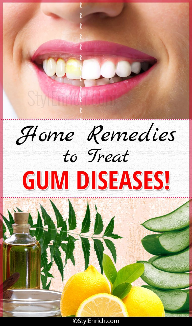 Home Remedies For Gum Disease That You Must Try Once