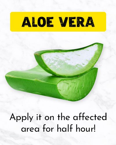 Aloe Vera For Ingrown Hair