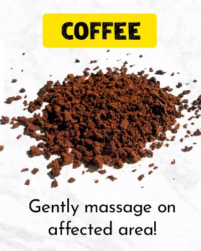 Coffee For Ingrown Hair