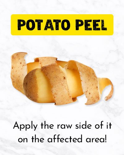 Potato Peel For Ingrown Hair