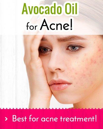 Avocado Oil Treats Acne