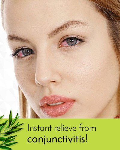 Tea Tree Oil To Get Relief From Conjunctivitis