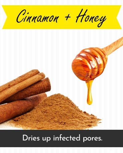 Honey & Cinnamon Face Mask For Acne