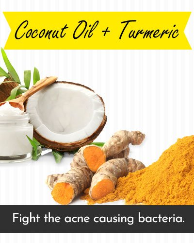 Coconut Oil & Turmeric Face Mask For Acne