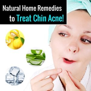 chin-acne-remedies