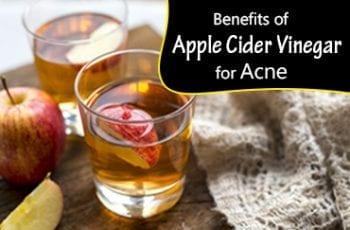 Benefits of Apple Cider Vinegar for Acne