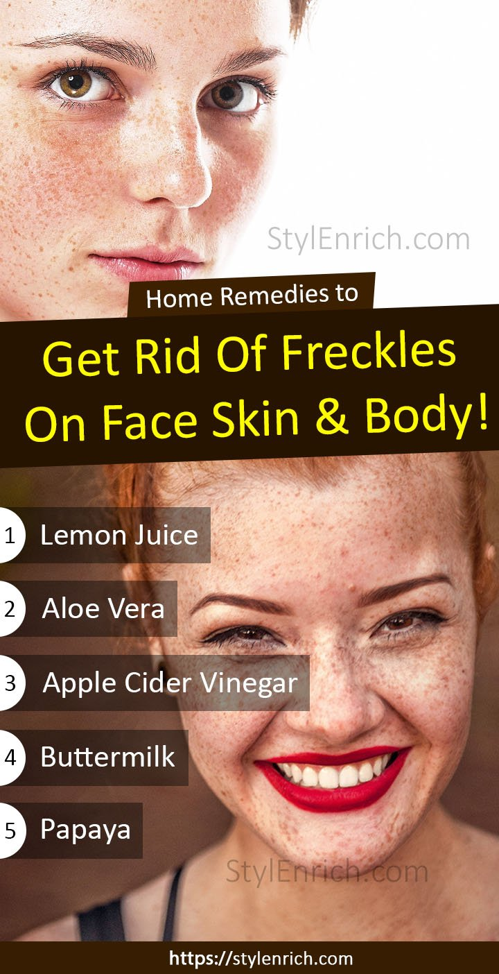 Home Remedies to Remove Freckles on Face Skin