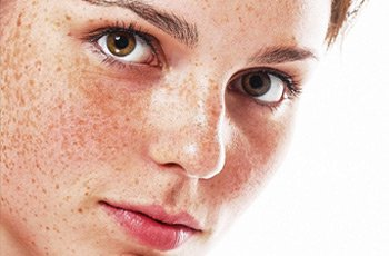 Get rid of freckles using home remedies
