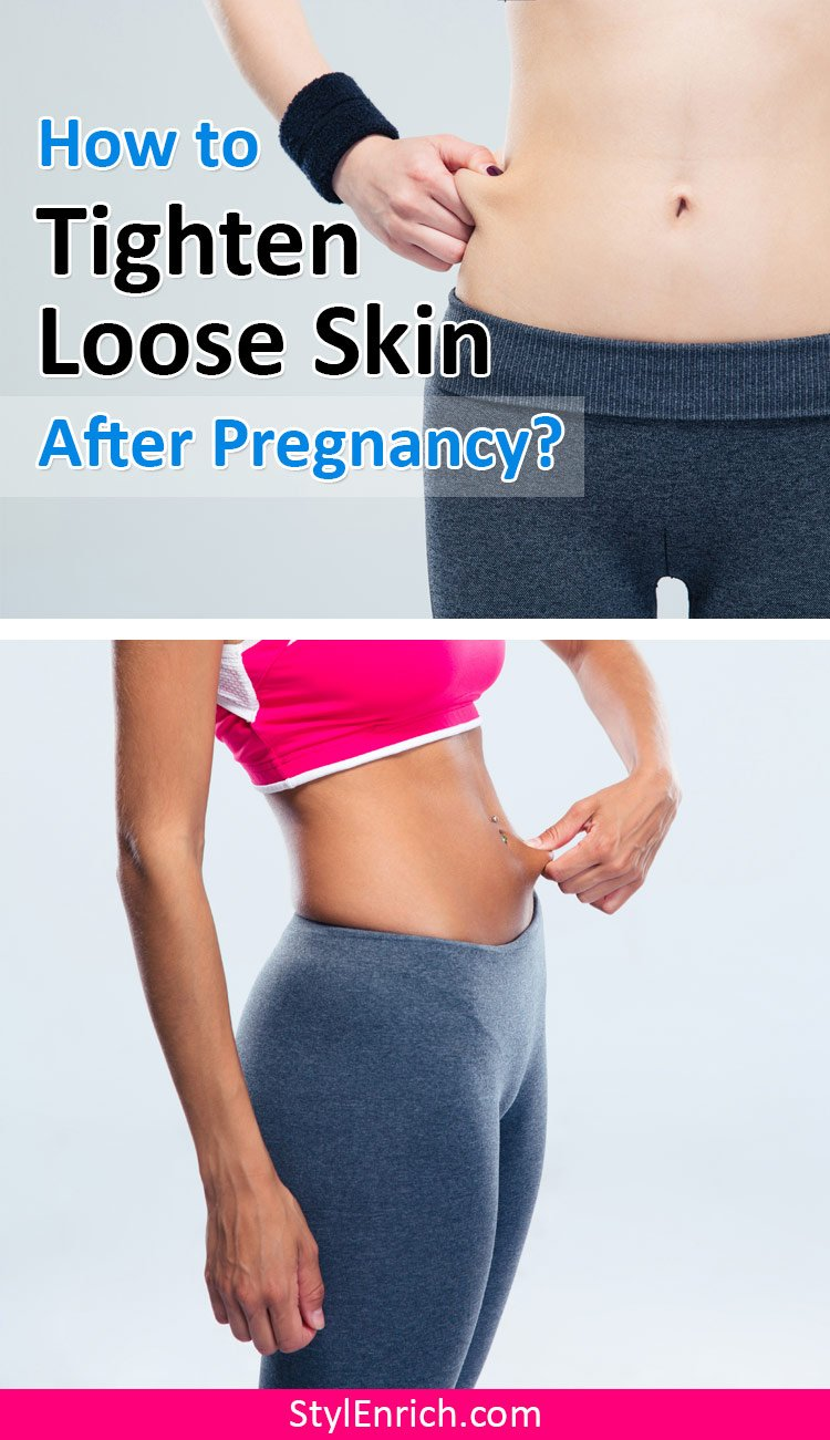 How to tighten loose skin after pregnancy